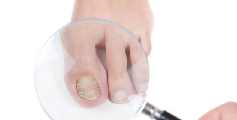 Podologia - Problemas das Unhas